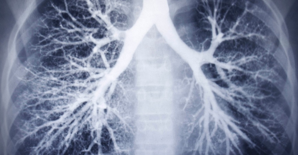 X-ray of COVID lungs