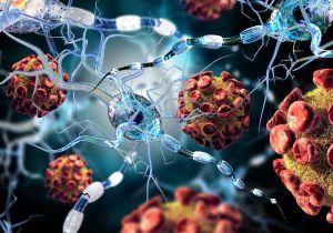 COVID attacks neurons