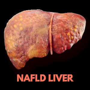 NAFLD Liver